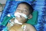Nghệ An: Bé trai 6 tuổi nguy kịch vì đàn ong tấn công