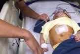 Hà Tĩnh: Xót xa bé gái 8 tháng tuổi đã phải trải qua 2 lần phẫu thuật não