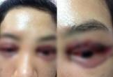 Vụ cắt mí gây bão mạng xã hội: Mắt chảy máu nhưng nữ khách hàng