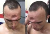 Choáng với chấn thương… lõm trán của võ sĩ Muay Thái