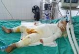 Nhói lòng trước tình cảnh bé trai 2 tuổi bị bỏng toàn thân ở Hà Tĩnh