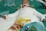 Rơi nước mắt hoàn cảnh bé 18 tháng tuổi ngã vào nồi nước sôi, cha mẹ không còn nơi bấu víu
