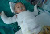 Hà Tĩnh: Hơn 18 triệu đồng bạn đọc giúp đỡ bé Nguyễn Đức Thế bị bỏng