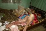 Hà Tĩnh: Người phụ nữ bị bỏng toàn thân không có tiền chữa trị