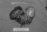 Tình cờ phát hiện, u gan đã nặng 2,5kg