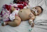 Thương bé gái Ê đê 6 tháng tuổi mắc bệnh não úng thủy kèm nhiễm trùng huyết nặng