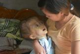 Hà Tĩnh: Xót xa bé gái 4 tuổi bị ung thư não giai đoạn cuối