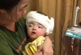 Bé gái 21 tháng tuổi đã giành được sự sống sau 11 lần phẫu thuật