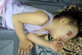 Người mẹ trẻ khẩn cầu xin cả thế giới giúp con gái mình có được khuôn mặt lành lặn