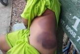Bé trai khuyết tật học lớp 1 bị cô giáo đánh bầm tím khắp người