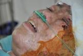 Nổ gas kinh hoàng, người mẹ trẻ nguy kịch tính mạng