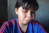 Nữ sinh 8 năm chống chọi với bệnh tật mong có tiền phẫu thuật khối u trên mặt