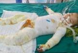 Hà Tĩnh: Gia cảnh éo le, bé trai 21 tháng tuổi rơi vào nồi nước sôi cần được giúp đỡ