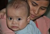 Hà Tĩnh: Xót xa bé 10 tháng bị u nguyên bào gan