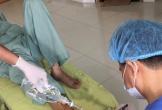 Bác sĩ rùng mình cứu bàn chân hoại tử do bệnh nhân tự chữa đái tháo đường