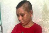 Một phụ nữ nghi bị chủ tra tấn man rợ đến