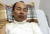Hà Nội: Bé gái 9 tuổi hoảng loạn vì bố bị tạt axit ngay trước mặt