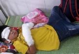 Nghệ An: Cháu bé 7 tuổi bị nát bàn tay do nổ điện thoại