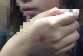 Gã đàn ông cưỡng hôn cô gái trong thang máy bị phạt 200.000 đồng