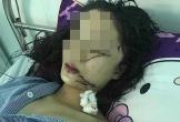 Vụ thiếu nữ 18 tuổi xinh đẹp bị 3 người rạch mặt: Hé lộ nguyên nhân bi kịch