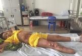 Cậu bé bị bỏng điện cao thế biến chứng viêm xương phải phẫu thuật tiếp