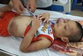 Mẹ đồng tính, bé trai 6 tuổi bị bạo hành dã man