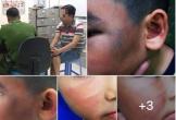 Bé trai 7 tuổi bị đánh chảy máu mũi, đa chấn thương vì nghi trộm gà ở chung cư Sài Gòn, người cha đau đớn viết 'tâm thư' cảnh báo