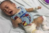 Tiếng khóc xé lòng của bé trai 14 tháng tuổi bị bỏng nước sôi