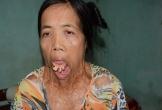 Người đàn bà nửa thế kỉ mang hàm răng
