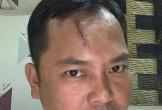 Giang hồ vây xe chở công an ở Đồng Nai: Người bị đánh yêu cầu khởi tố