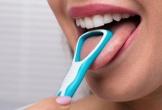 Dấu hiệu bất thường ở lưỡi cảnh báo bệnh