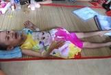 Cha mẹ nghèo nghẹn lòng nhìn con nhỏ mắc ung thư máu