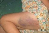 Cô giáo đánh một học sinh lớp 3 bầm tím đùi…vì làm bài sơ sài