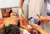 Hà Tĩnh: Đang học bài, laptop bất ngờ phát nổ khiến 3 học sinh phải nhập viện cấp cứu trong tình trạng bị nổ nát bàn tay trái