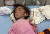 Cuộc sống của em bé Lào Cai bị suy dinh dưỡng sau 4 năm được 'người mẹ trẻ' nhận nuôi bây giờ ra sao?