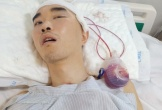 Công nhân điện lực bị xuất huyết não, gia đình rơi cảnh kiệt quệ