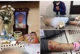 Bắt khẩn cấp cha dượng và mẹ bé gái tử vong nghi bị tra tấn dã man ở Hà Nội