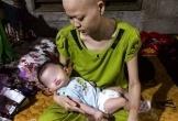 Vừa sinh con, người phụ nữ phát hiện bị ung thư giai đoạn cuối