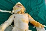Vụ hỏa hoạn khiến 4 người bỏng nặng khi đang ngủ: Bố và con nhỏ 9 tháng đã tử vong