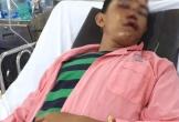 Chàng trai nghèo nguy kịch do tai nạn giao thông