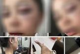 Vợ 9X tố chồng bạo hành từ 23 giờ đêm đến 4 giờ sáng, dùng gậy sắt đánh tới biến dạng khuôn mặt