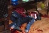Thái Bình: Nam thanh niên dùng dao đâm bạn gái tử vong rồi tự đâm mình