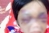 Mẹ đẻ bạo hành con gái 6 tuổi thâm tím mặt mày, nhốt trong phòng trọ