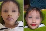 Thẩm mỹ viện phun môi cho bé gái 5 tuổi